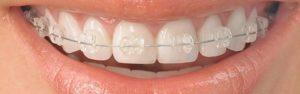 ortodoncia en alcala 2