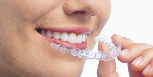 ortodoncia en Alcala 3