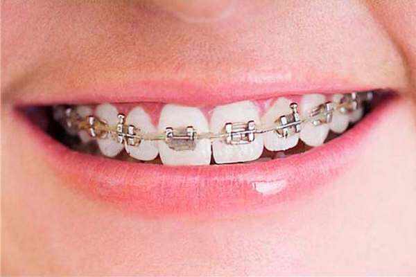 Ortodoncia en Alcala 1
