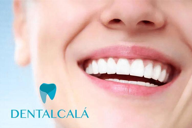 Odontología preventiva Dentalcalá
