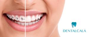 Tratamiento en ortodoncia Dentalcalá